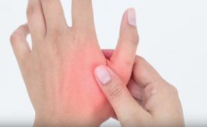 Thumb osteoarthritis, thumb arthritis, thumb pain, arthritis in hand, basal joint, basal joint arthritis, basal joint osteoarthritis