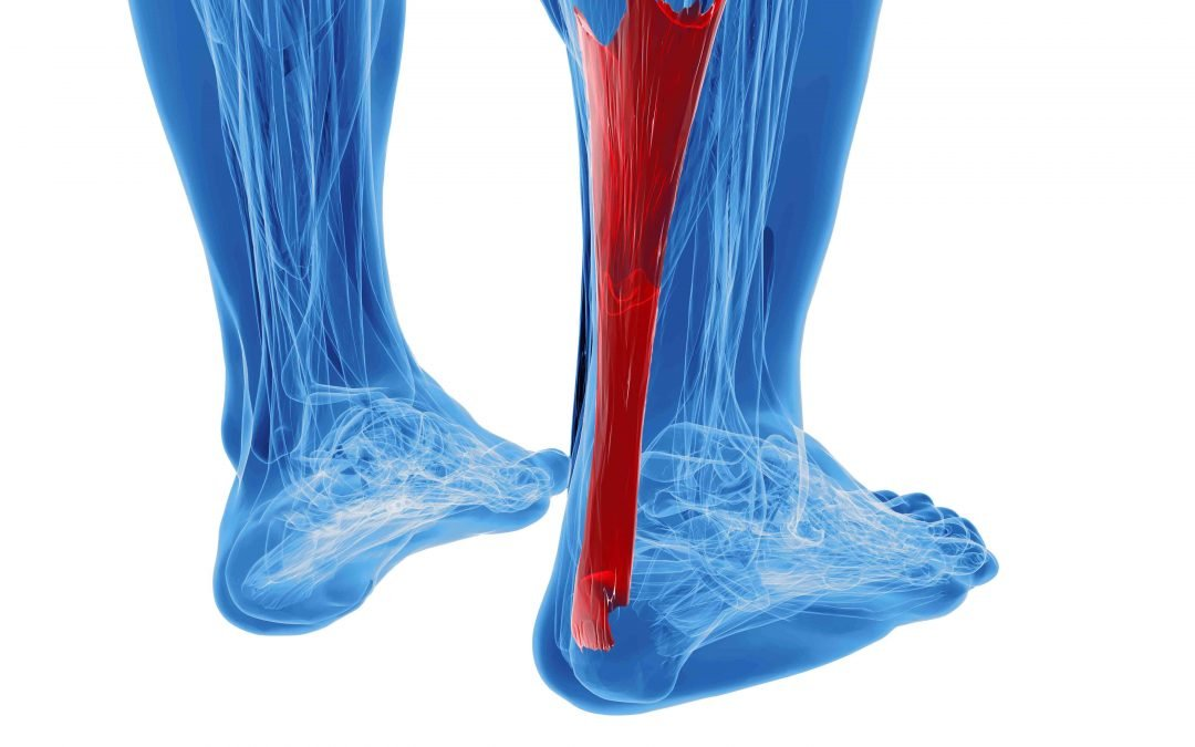 Achilles Tendon Injuries are Worse Than You Think