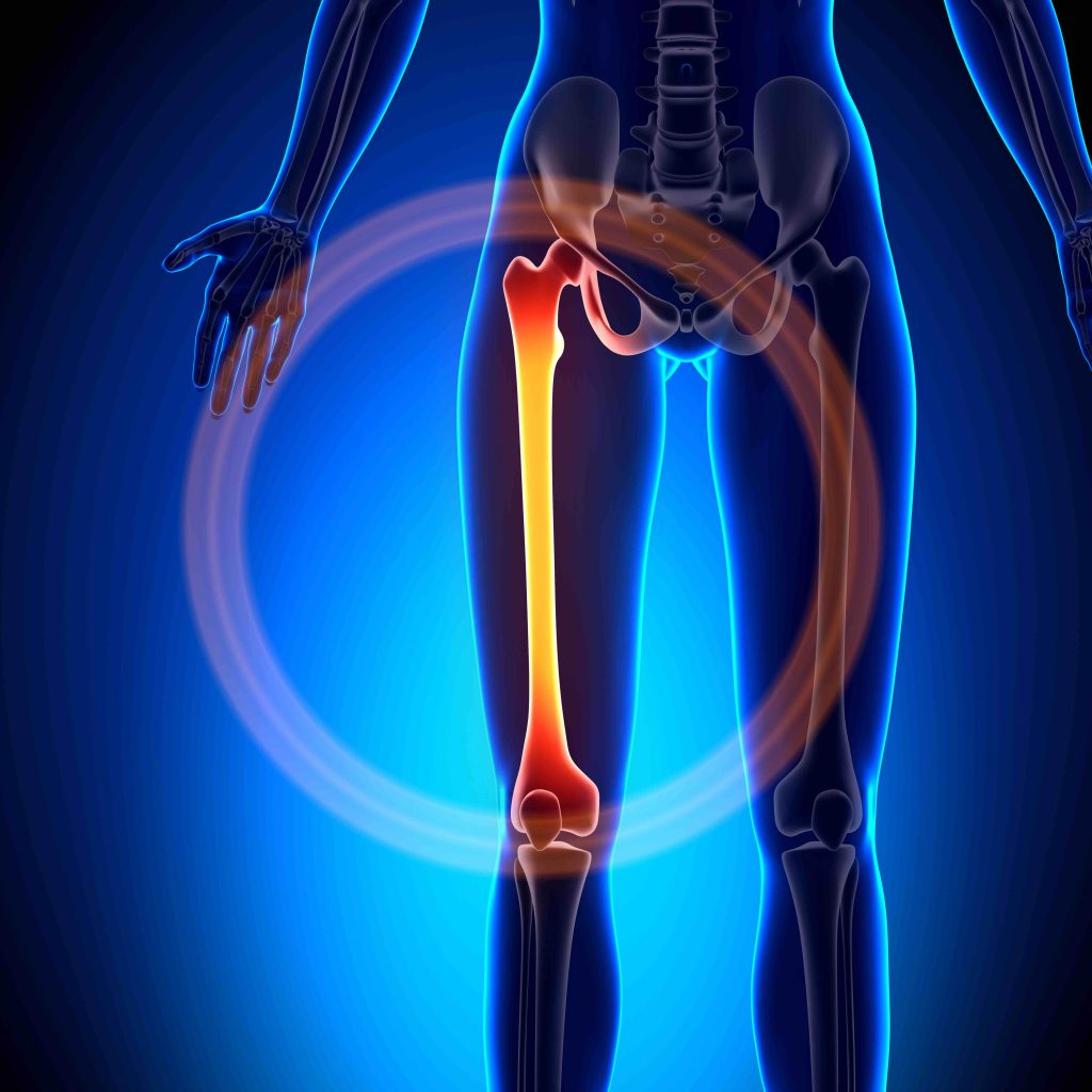 Femur or lower extremities issues