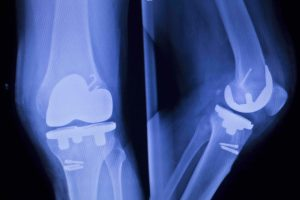 Knee joint implant replacement xray showing in medical orthpodedic traumatology scan.