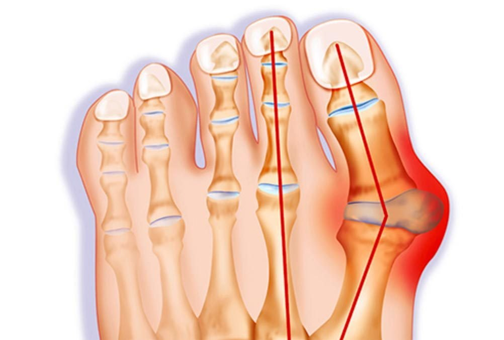 It's Not Just Your Grandmother Who Suffers from Bunions